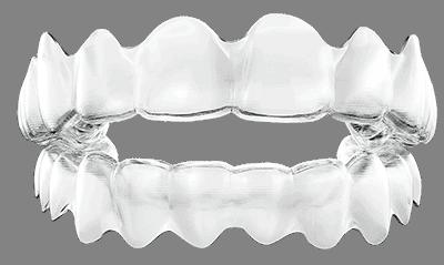 durchsichtige Zahnspange