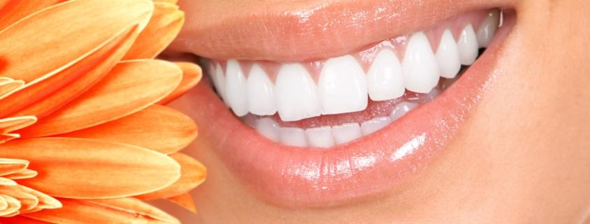 Einfach schöne Zähne