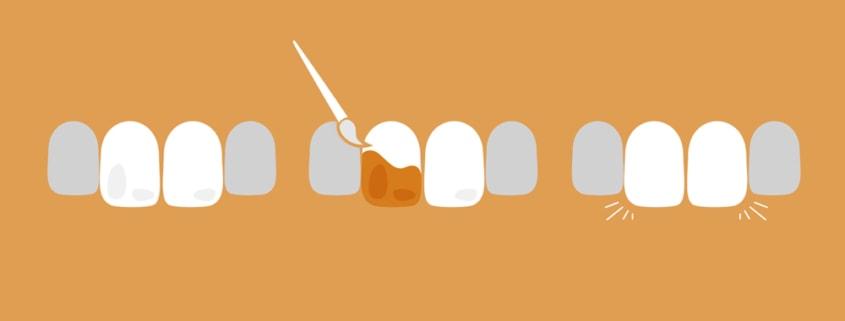 Grafik Zahnbehandlung Icon