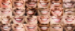 Bildkollage mit vielen lachenden Mündern