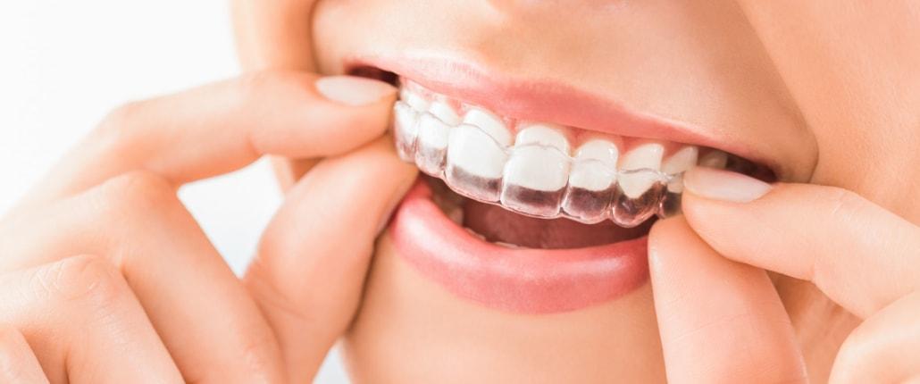 durchsichtige Zahnschiene